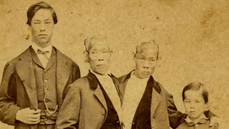 Four unbelievable true facts about Chang and Eng Bunker ...
